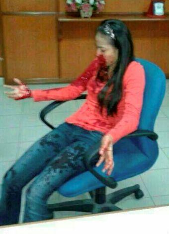 Nurul Atikah menunjukkan kesan darah pada bahagian muka dan tangan yang menjadi mangsa terbaru kejadian tembakan di persimpangan lampu isyarat Simpang Empat Binjai, Kubang Kerian di Kota Bharu pada Jumaat. Foto IRWAN MAJID