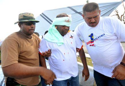 Presiden Kelab Putera 1Malaysia (KP1M), Datuk Abdul Azeez Abdul Rahim (tengah) dipapah setelah mengalami kecederaan di kepala selepas besi yang digunakan untuk mendirikan khemah, tumbang ditiup angin kencang dan menghempap kepalanya di kawasan operasi sukarelawan KP1M di Lapangan Terbang Daniel Z Romualdez di Tacloban pada Sabtu. Selepas kejadian itu, beliau terus dibawa ke klinik lapangan yang diselenggara Kor Perubatan Angkatan Tentera Malaysia, di sini, dan menerima empat jahitan dan suntikan anti tetanus. Keadaan beliau bagaimanapun dilaporkan stabil. -fotoBERNAMA
