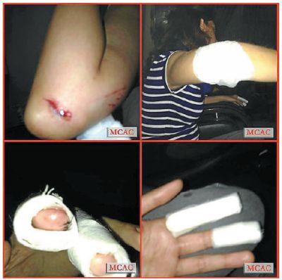 Tina menunjukkan kecederaan yang dialaminya ketika bergelut dengan seorang lelaki yang menyerangnya di Bangsar.